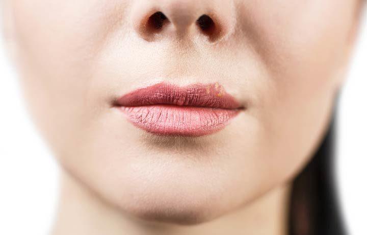 Rissige Lippen
