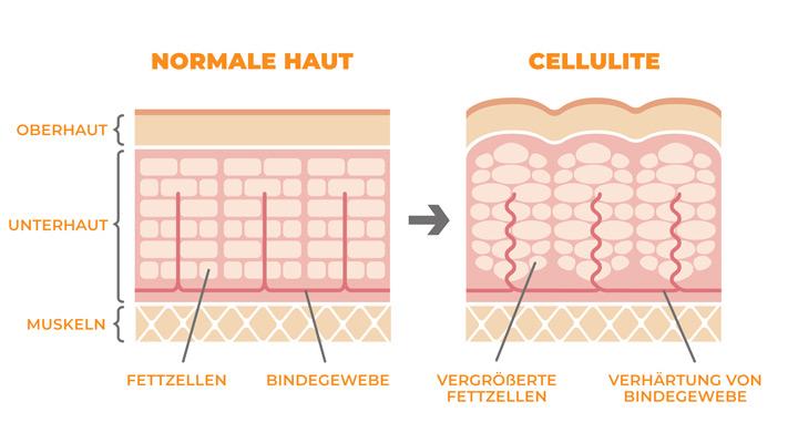 Entstehung von Cellulite – Schaubild