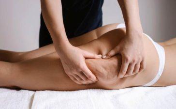 Tipps gegen Cellulite